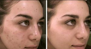 best home remedies for dark spot removal