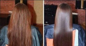 hair treatment kit under 500 rs
