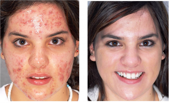 Pigmentation removal in Delhi, Services, Procedure, and Benefits