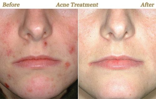 Acne Scar Removal by Laser Therapy, Important Tips