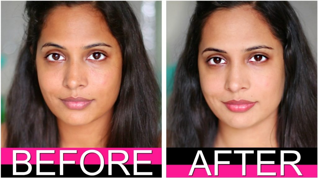 Skin whitening in Delhi, Procedure, Recovery Time, Results and Advantages