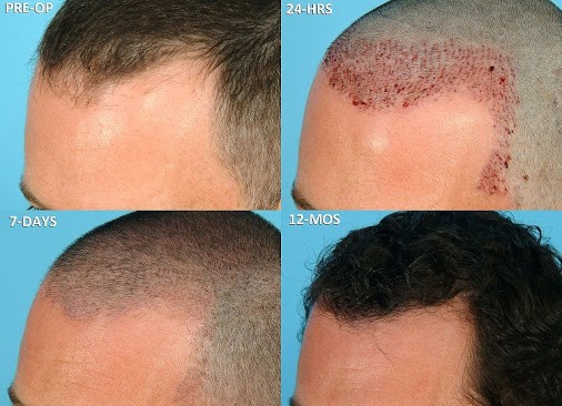 Image result for Best Hair Transplant Method