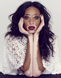Vitiligo, Causes, Symptoms and Best Treatment