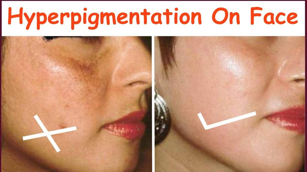 Best Skin Peels To Treat Hyperpigmentation
