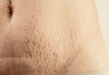 Best Treatment to Hide Your Stretch Marks Permanently